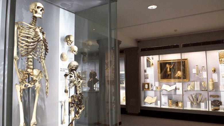 Charles Byrne's bones on display at the Hunterian Museum